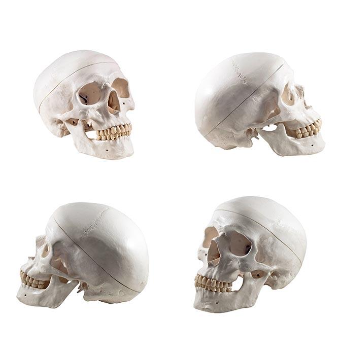 Craniofacial