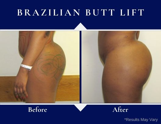 These before and after images showcase how Brazilian Butt Lift surgery is used to create a curvier bum.